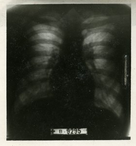 Science Radiological Examination of the Lung France Old Radio Photography 1948