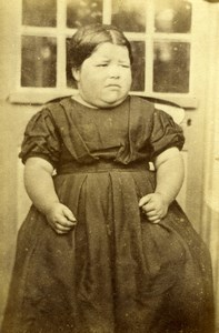 Hawaii or Asia? Sad Chubby Young Girl Child Portrait Old CDV Photo 1860's