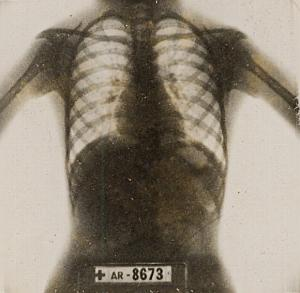Thoracic Image Rayon X France Old Photo 1947