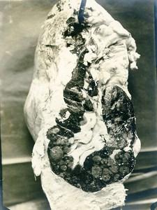 France Reims Slaughterhouse Veterinary Medecine Organs Old Photo 1910