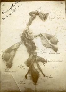 France Reims Slaughterhouse Veterinary Hermaphroditism Sheep Old Photo 1900