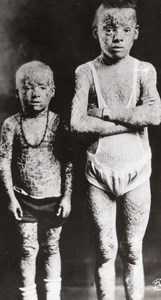 Elephant Skinned Kids of Mexico Circus Freaks Ichthyosis Old Photo 1930
