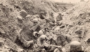France WWI Skulls Body Parts in Trench Battlefield old Photo 1914-1918